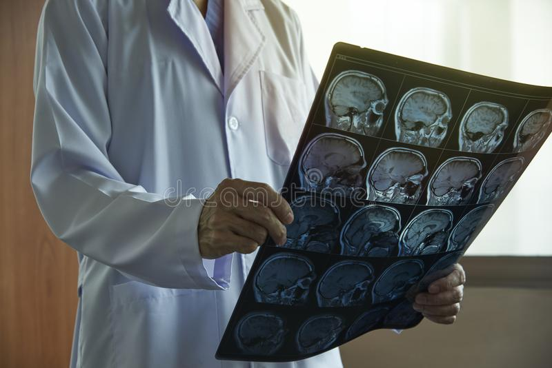 Doctor holding brain MRI in medical office stock photos