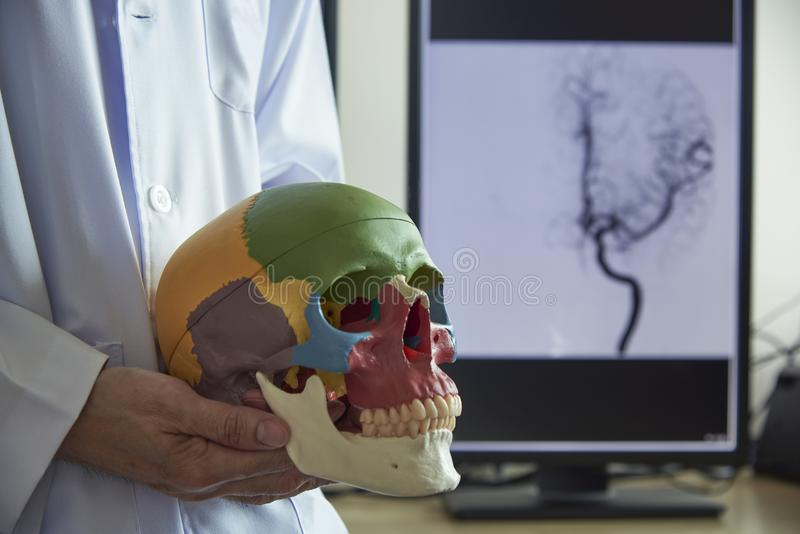 Doctor holding skull model in medical office. Doctor holding human skull model in medical office. Angiogram of head in computer monitor on background royalty free stock images