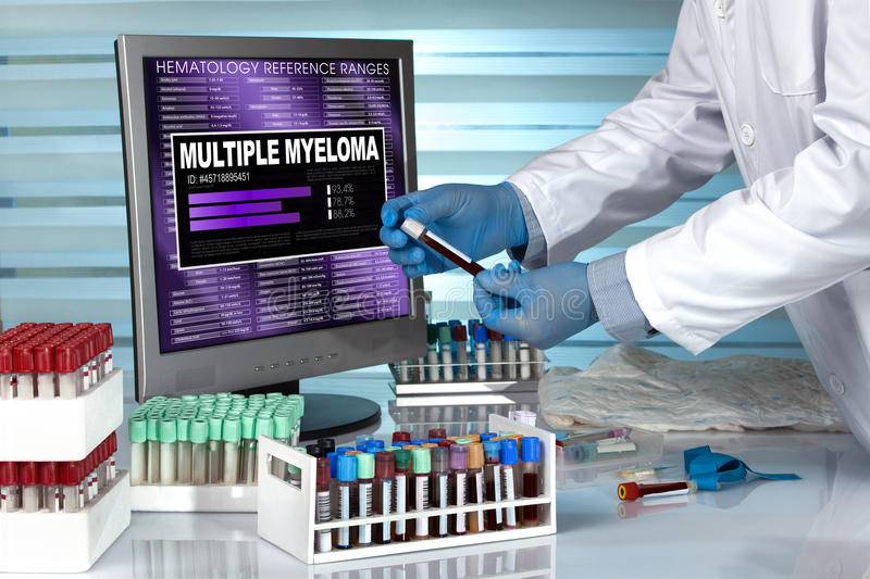 Doctor in lab examining blood sample with the text multiple myeloma in screen of computer. Technician with blood sample and text multiple myeloma in the software royalty free stock photography