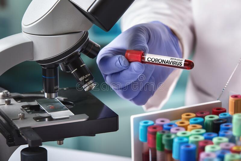 Doctor in the laboratory with a blood tube for analysis and sampling of Coronavirus under the microscope stock photography