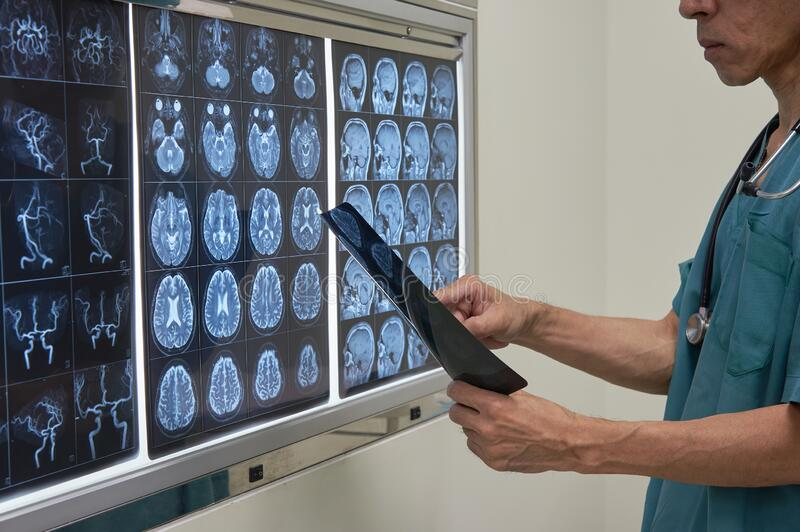 Doctor looking at MRI film of human brain. In operating room royalty free stock images