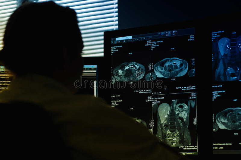 Doctor looking at MRI scan royalty free stock photos