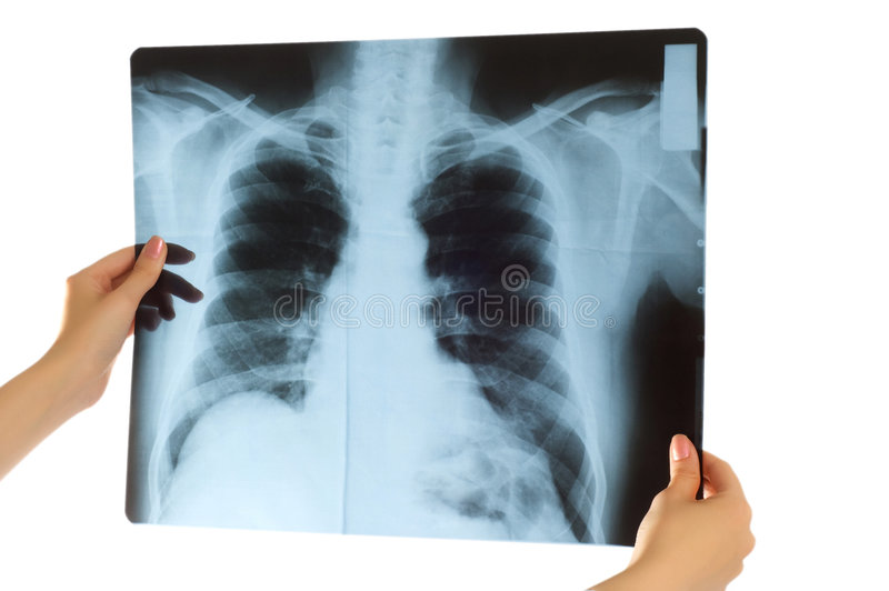 Doctor looking at x-ray image. On white stock photography