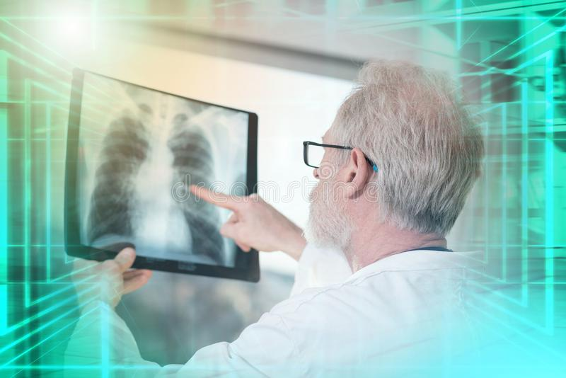 Doctor looking at x-ray; multiple exposure. Doctor looking at x-ray report; multiple exposure royalty free stock photo