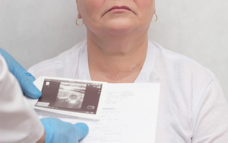 Doctor looks at results of an ultrasound scan of an adult woman`s thyroid gland, endocrine system disturbance, close-up royalty free stock photography