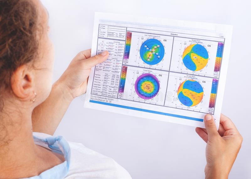 The doctor looks at the topography of a patient whose keratoconus  2-3 stages. problems with vision royalty free stock image