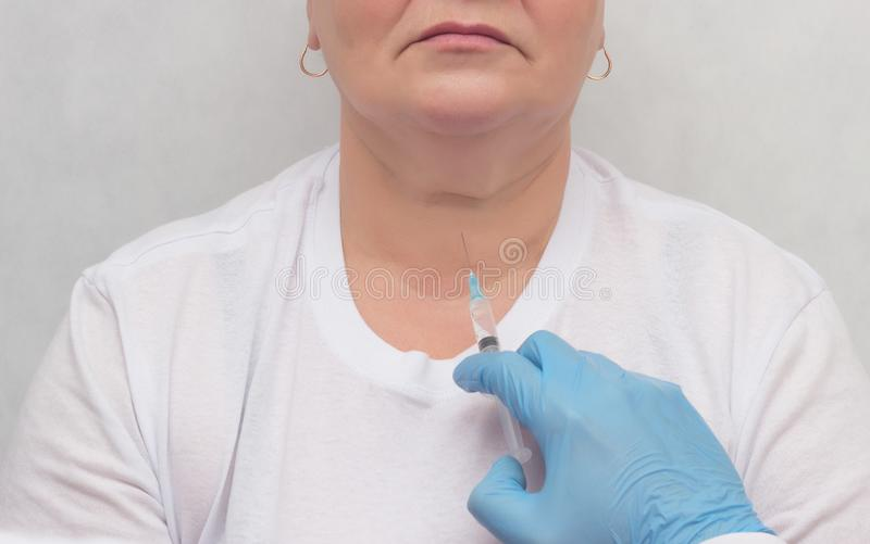 Doctor makes a patient patient a thyroid biopsy on suspicion of oncology, thyroid node, close-up, medic, endocrinology stock images