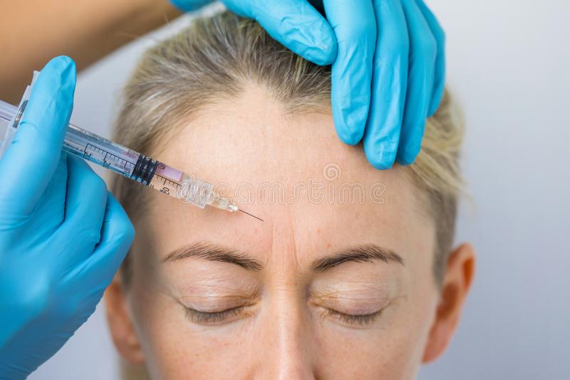 Doctor makes the rejuvenating facial injections for smoothing woman`s forehead skin stock photo