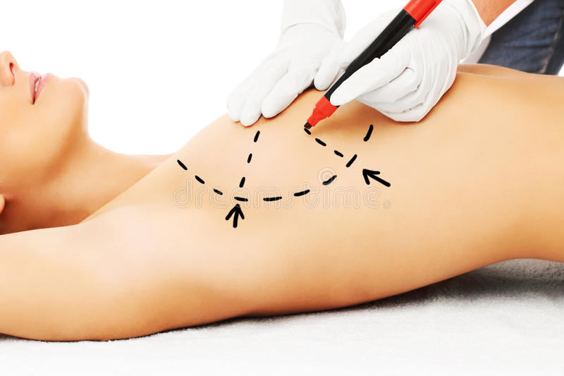 Doctor marking breast for surgery royalty free stock images