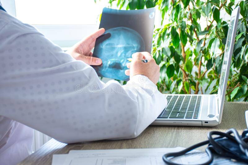 Doctor in office near computer considers and examines X-ray of human skull. Photo of process of diagnosis of disease or disorder o. F bone skull system stock image