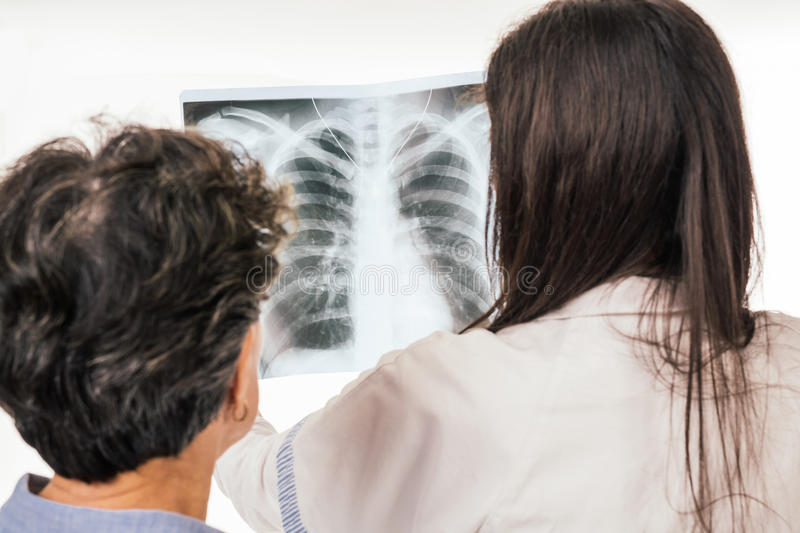 Doctor and patient analyzing chest radiography stock photos