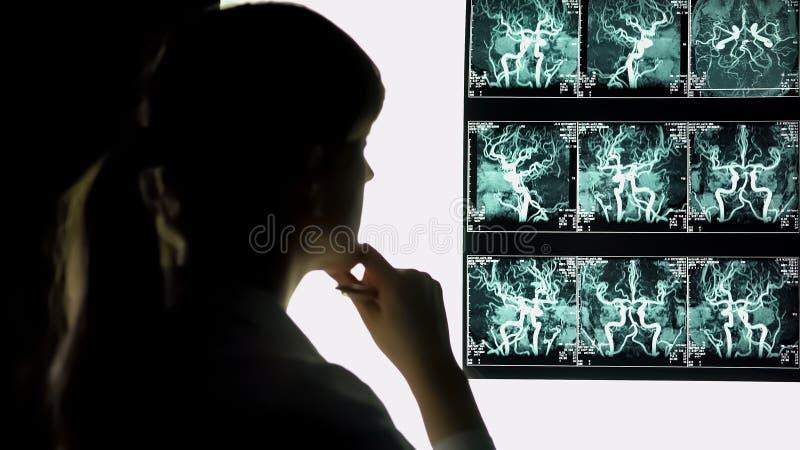 Doctor pensativo que mira la radiografía de los vasos sanguíneos, atención sanitaria, neurocirujano foto de archivo libre de regalías
