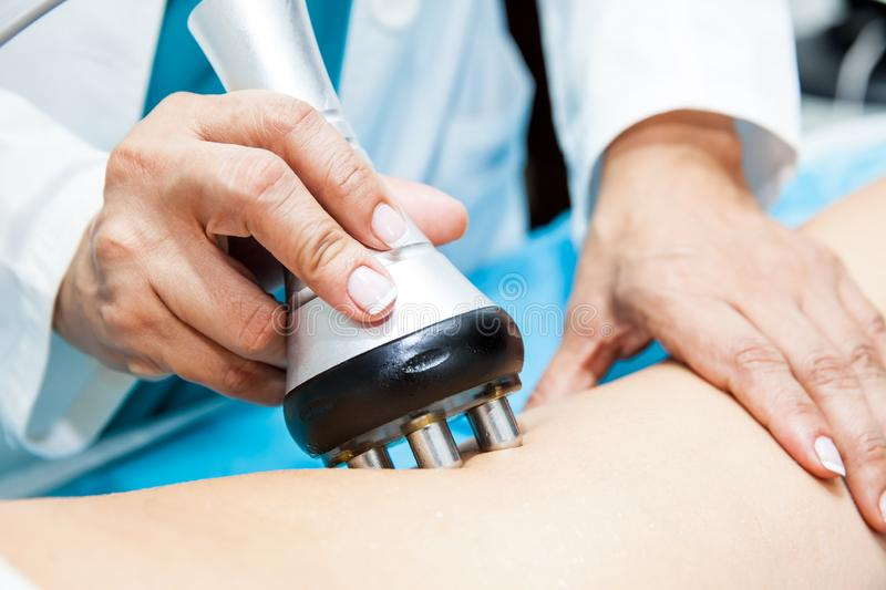 Doctor performing a radiofrequency treatment on a female patient leg. Doctor performing a radiofrequency treatment on a young female patient leg stock images