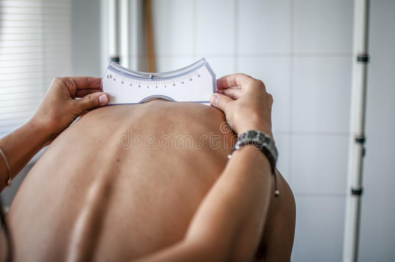 Posture and scoliosis royalty free stock images