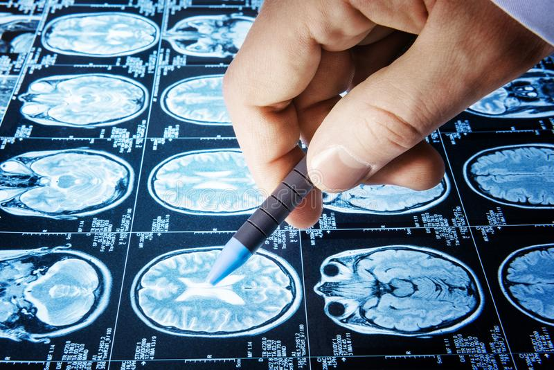 Doctor point a picture of a brain MRI workflow in diagnostic hos royalty free stock photos