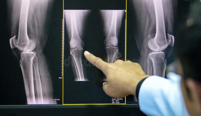 Doctor pointing on the knee problem point on x-ray film. x-ray film show skeleton knee on film. Surgery medical technology concept stock photos