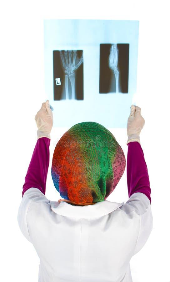 doctor que comprueba la película de la radiografía del pecho imagen de archivo