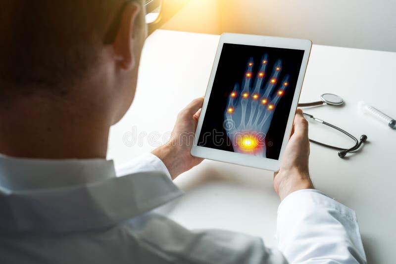 Doctor que sostiene una tableta digital con la radiograf?a de una mano derecha con dolor en las juntas de fingeres y del concepto imagenes de archivo