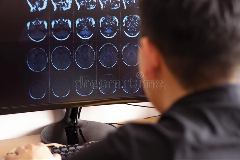 Doctor radiologist in hospital looking at mri x-ray scan of brain, skull and head ct scanning on computer screen stock images
