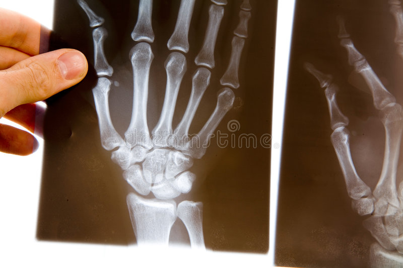 Doctor with x-ray of hand royalty free stock photos