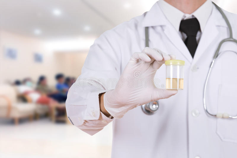 Doctor's hand holding a bottle of urine sample in hospital stock photography