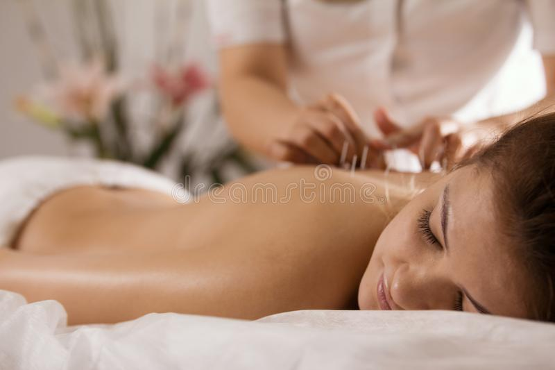 The doctor sticks needles into the girl`s body on the acupuncture - close up royalty free stock photo