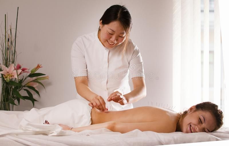 The doctor sticks needles into the woman`s body on the acupuncture stock photo