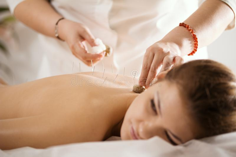 The doctor sticks needles into the woman`s body on the acupuncture royalty free stock image