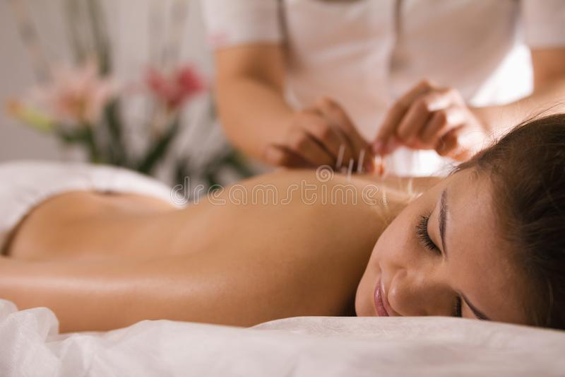 The doctor sticks needles into the woman`s body on the acupuncture - close up stock images