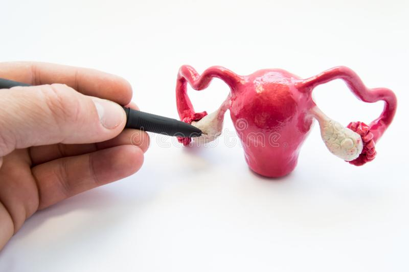Doctor or teacher points of ballpoint pen on ovaries on anatomical model of internal female sex organs. Ovaries organ where eggs a royalty free stock image