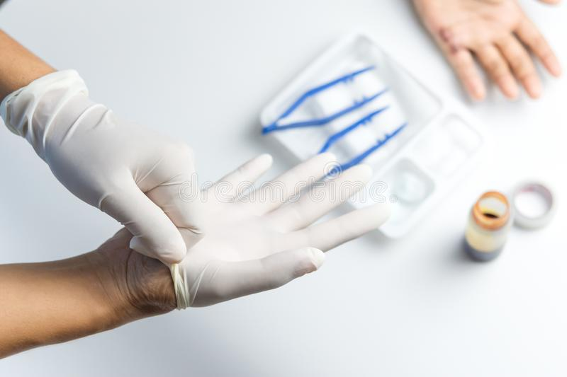 Doctor wearing gloves to clean the wound on the boy`s palm stock images