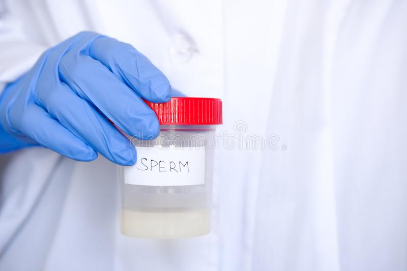 Doctor in a white coat and medical gloves holding a container with semen analysis, with the inscription in English. Donor sperm stock photos