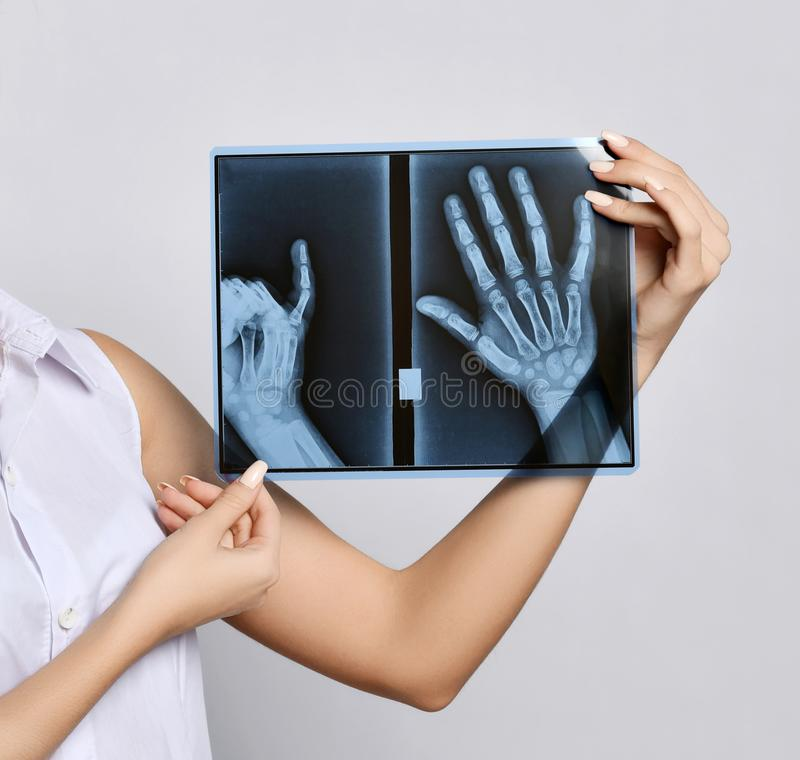 Doctor woman hands hold X-ray examination royalty free stock photography