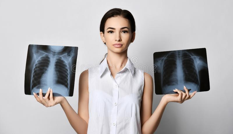 Doctor woman hold and compare two lungs X-ray examination of patient chest on gray stock photography