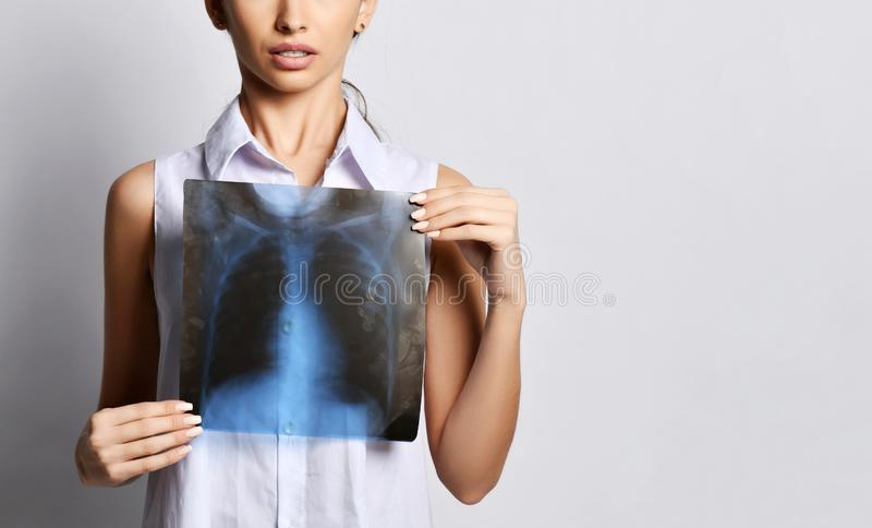 Doctor woman hold lungs X-ray examination of patient chest on gray royalty free stock photography