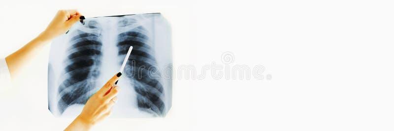 Doctora sosteniendo rayos X de pulmones Cartel fotografía de archivo