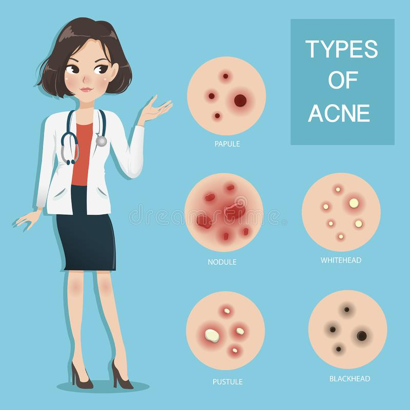 Doctors recommend typ of acne stock illustration