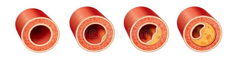 Doença arterial coronária ilustração royalty free