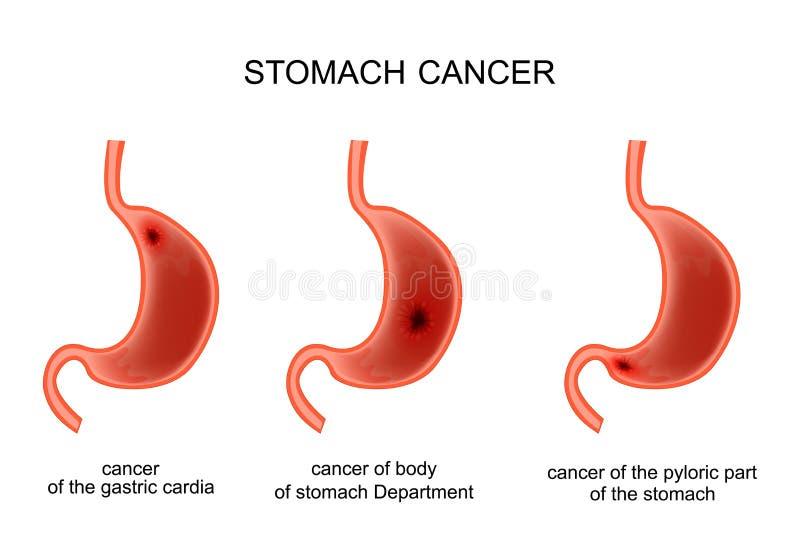 Doença cancerígeno do estômago ilustração do vetor
