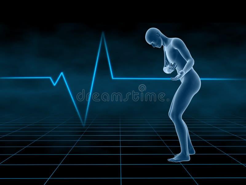 Doença cardíaca ilustração royalty free