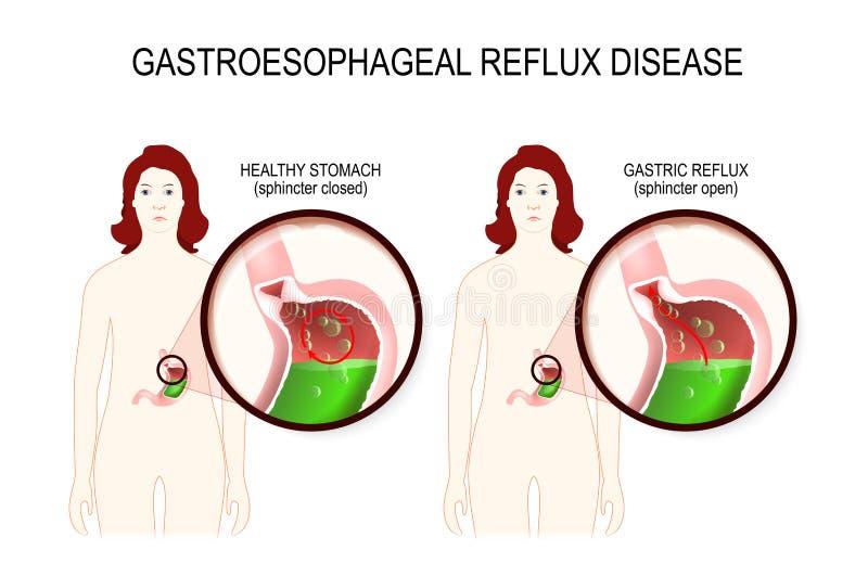 Doença da maré baixa Gastroesophageal GERD ilustração do vetor