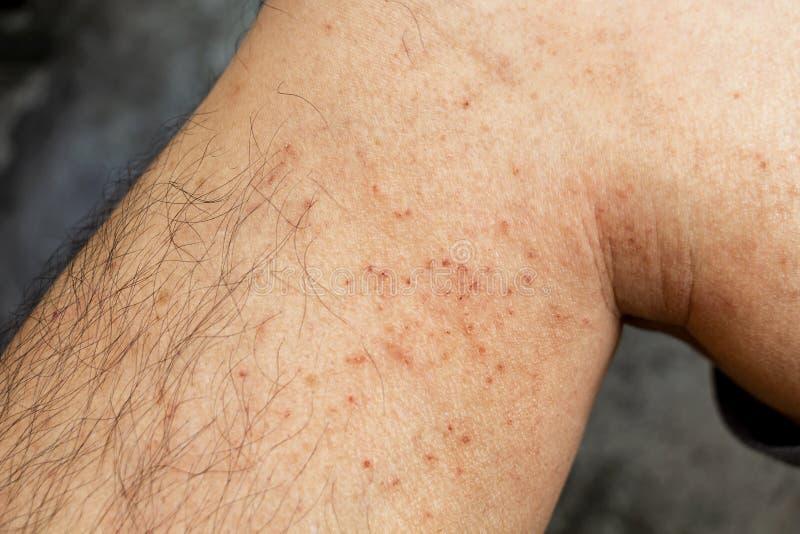 Doença da pele no inverno Pele seca de cicatrização e erupção cutânea vermelha da perna durante o frio Dermatologista e tratament imagens de stock