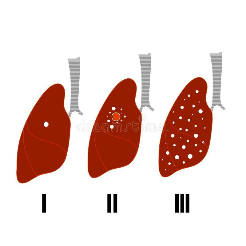 Doença da tuberculose da parada Bandeira de Infographics ilustração royalty free