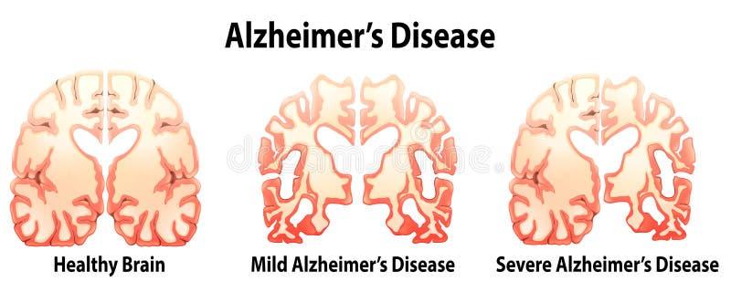 Doença de Alzheimer ilustração do vetor