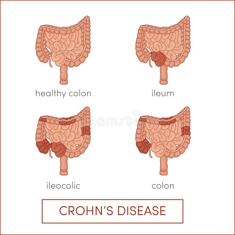 A doença de Crohn ilustração royalty free