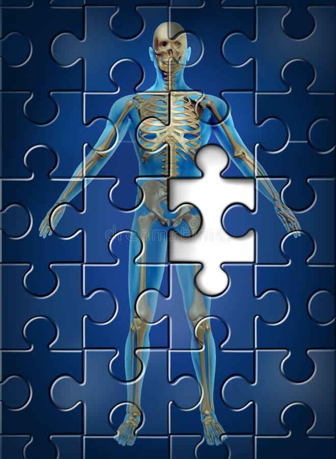 Doença de esqueleto humana ilustração stock