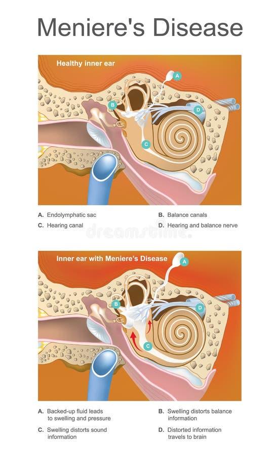 Doença de Meniere Ilustração Desordem da orelha interna que Ca ilustração royalty free