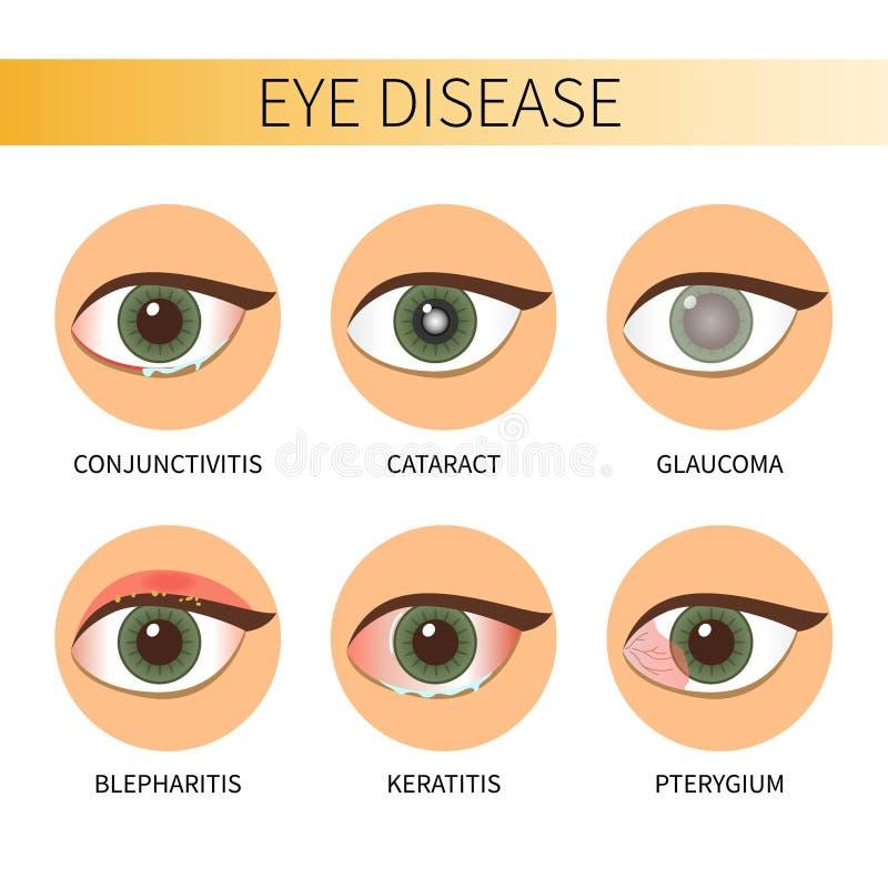 Doença de olhos de Infographic ilustração royalty free