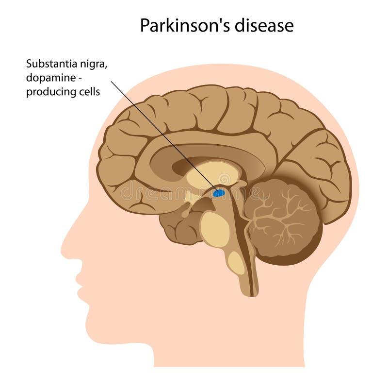 Doença de Parkinson ilustração do vetor