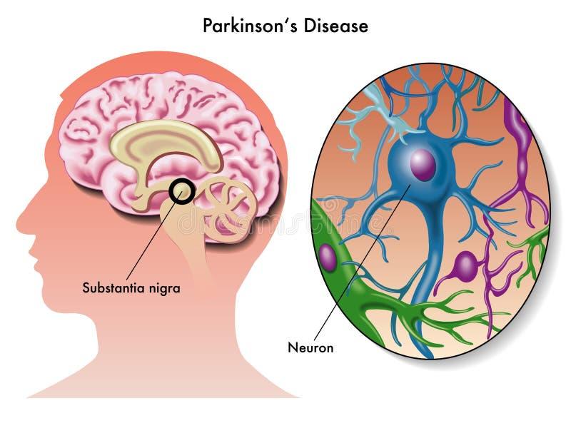 A doença de Parkinson ilustração stock